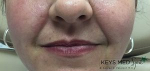 nasolabial folds before fillers