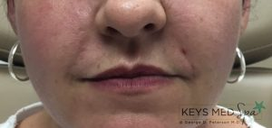 nasolabial folds after fillers