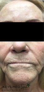 before dermal filler treatment