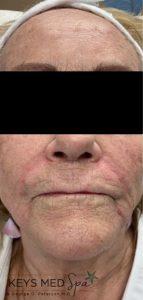 after dermal filler treatment