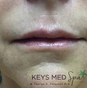 lips after treatment front view