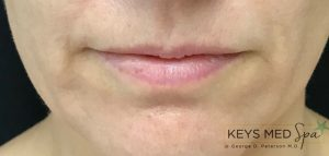 thin lips before fillers