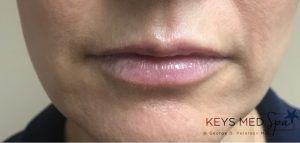 prominent lips after fillers