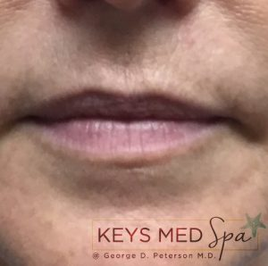 before lip filler treatment front view
