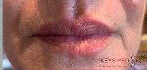 visibly plumper lips after fillers