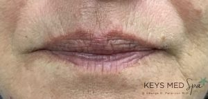 lips -before fillers
