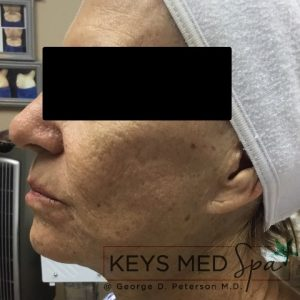 after SkinCeuticals treatment profile view