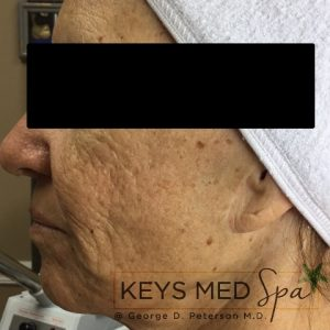 before SkinCeuticals treatment profile view