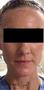 after facial treatment