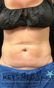 before coolsculpting to midsection