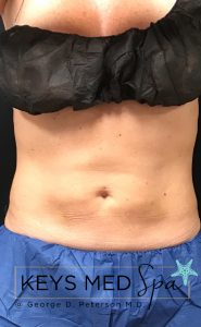 coolsculpting to midsection