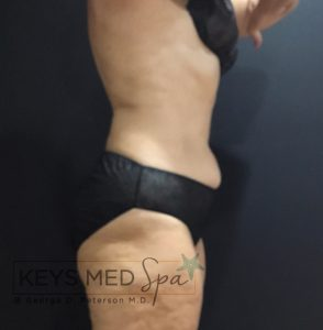 right profile view of patient after coolsculpting