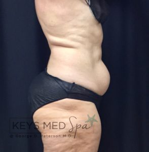 right profile view of patient before coolsculpting