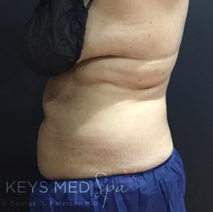 inches lost on abdomen after coolsculpting