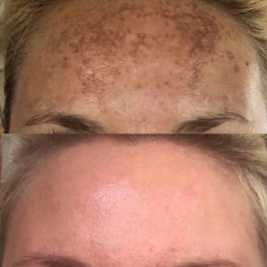 age spots before and after IPL treatment