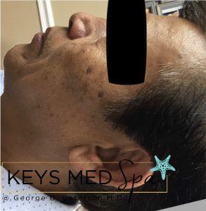 age spots on male patient