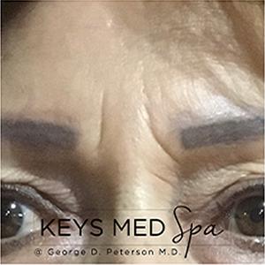 wrinkles before microneedling