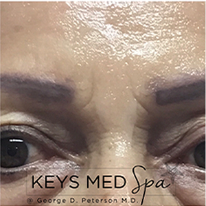 smoother glabella after microneedling